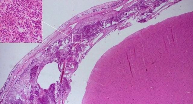 أطباء يكشفون عن مضاعفات خطيرة لفيروس كورونا